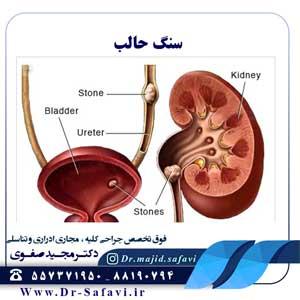 درمان سنگ حالب توسط دکتر مجید صفوی