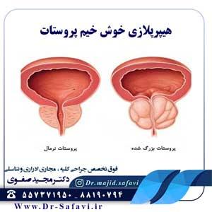 هیپرپلازی خوش خیم پروستات